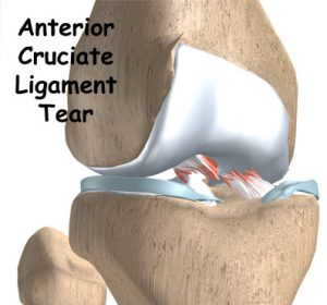 injuries to the ACL