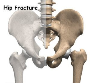 causes hip fracture