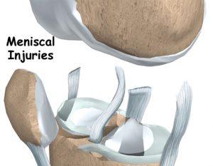 meniscus tears