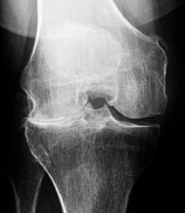 An X-ray does not signal the need for knee replacement