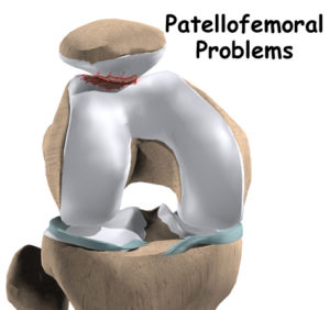 treatment of patellofemoral problems